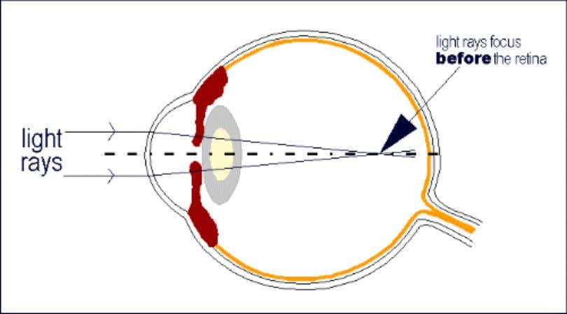 • Myopia – Refractive condition in which, with accommodation completely relaxed, parallel rays are brought to