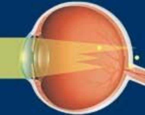 astigmatism • Refractive condition of the eye in which there is a difference in degree of