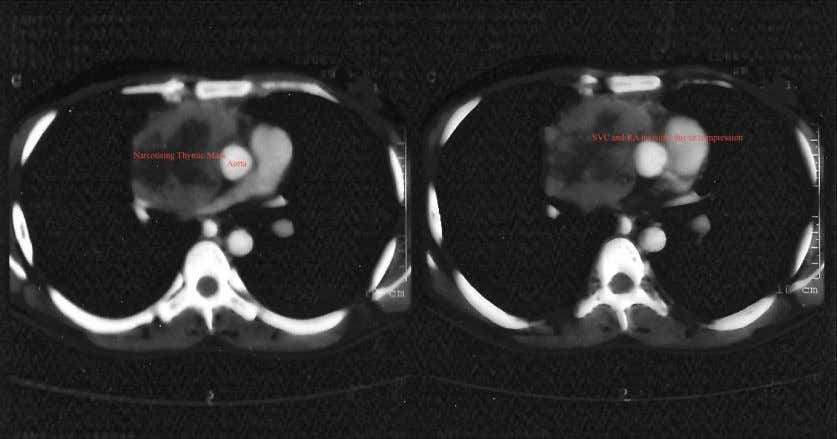 Fig.4 (a) Coronal views of reconstructed 64-slice CT Scan failing to show intracardiac extension of thymic