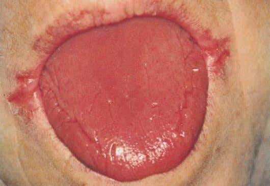 Plummer Vinson syndrome • Spoon shape nails--- Koilonychia • Atrophy of tongue • Angular stomatitis (Inflammation