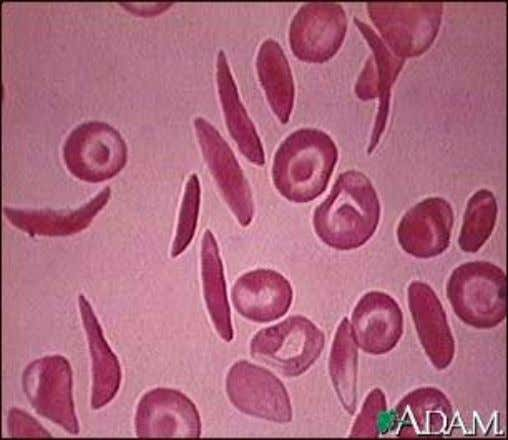 Sickle cell Anemia • Present in 0.3-1% of African & American blacks. • Contains HbS which
