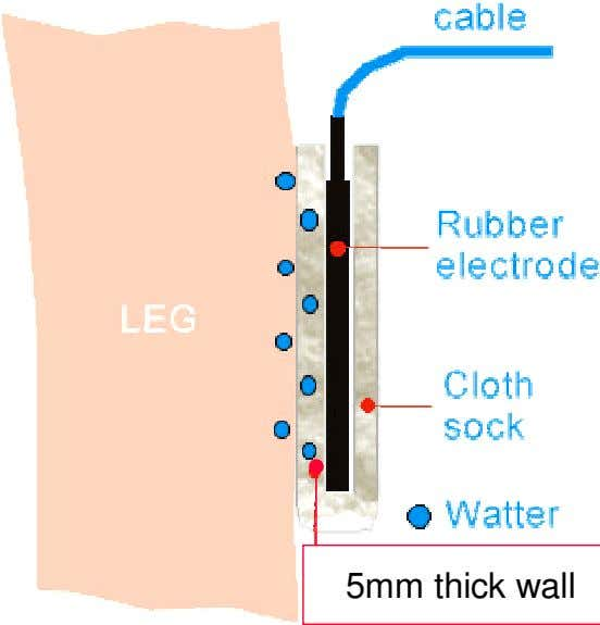5mm thick wall