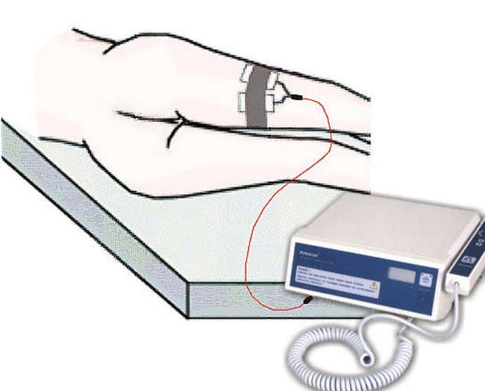 and Hemoron plug-in - - – patient patient Yall solution apply Preparation Preparation 20min. before treatment