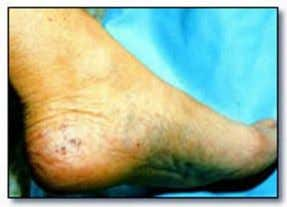 Herpangina Hand, foot and mouth disease Infectious mononucleosis rest and encouraging the patient to drink plenty