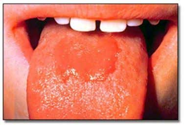 and may increase and Chronic Hyperplastic Candidosis Median Rhomboid Glossitis decrease (fluctuate) in size and