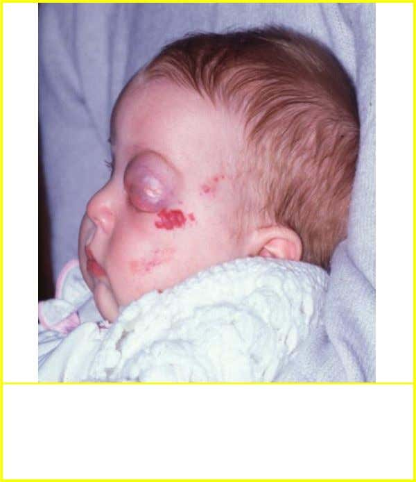 Capillary haemangioma • Most common orbital tumour in children • Presents - 30% at birth and