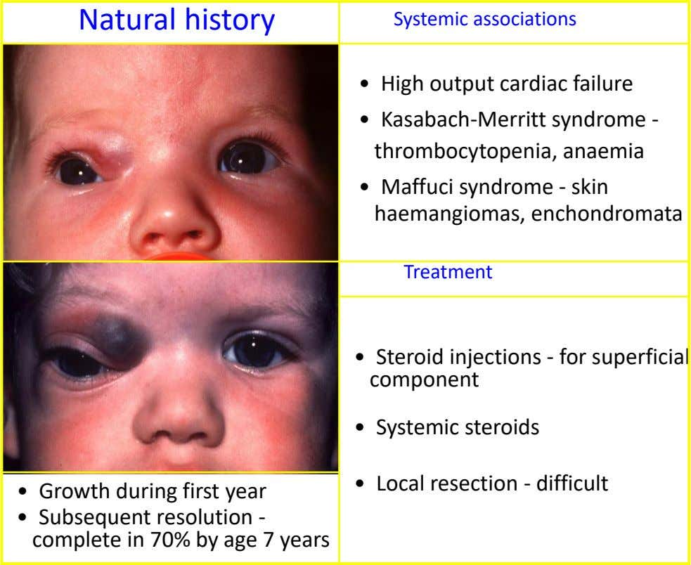 Natural history Systemic associations • High output cardiac failure • Kasabach-Merritt syndrome - thrombocytopenia, anaemia •