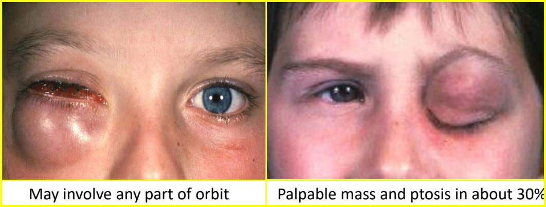 May involve any part of orbit Palpable mass and ptosis in about 30%