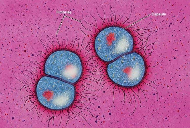 GONORE Caused by Neisseria gonorrhea , a pus producing bacteria Up to 1 MILLION people affected