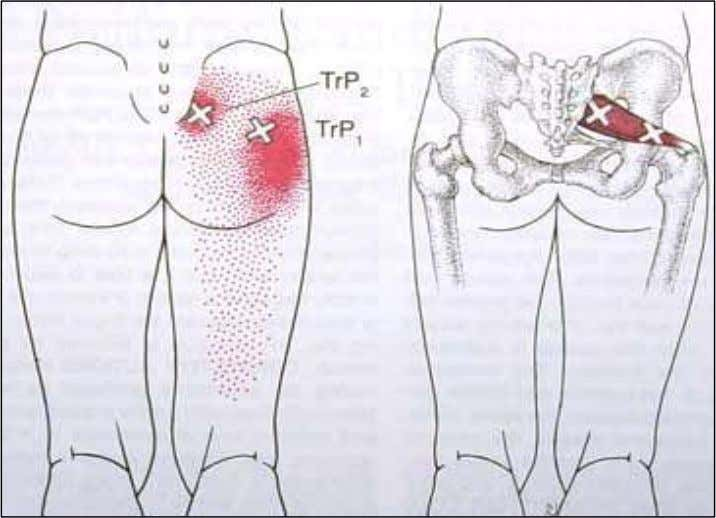 PIRIFORMIS Oh the ever popular piriformis muscle. Most of you reading this book have probably heard