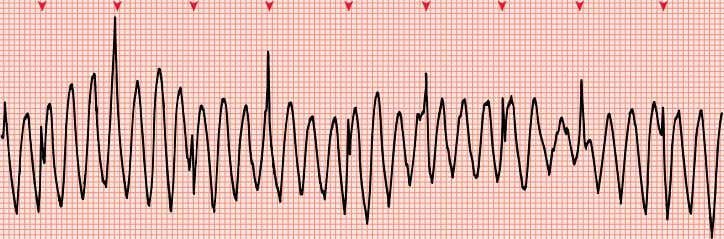 A B Monitor lead CHAPTER 22 ECG Artifacts II 219 Figure 22-3. Artifacts simulating major arrhythmias.