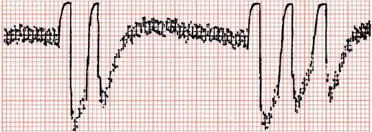 ventricular pre- mature beats, produced by patient movement. An arti- fact produced by 60-Hz interference is