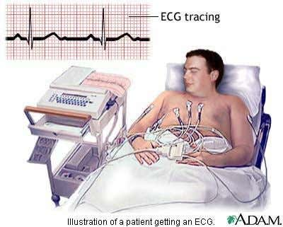 Diagnosis • Electrokardiogram (ECG or EKG) • Ambulatory monitor • Stress test • Echocardiogram • Cardiac