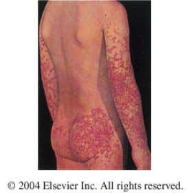 HSP due to an immune vasculitic reaction typically presents with a rash on the lower