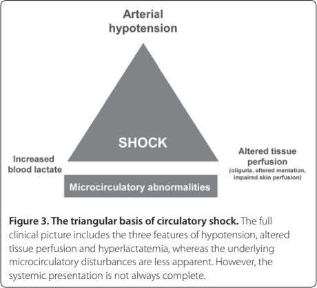 Figure 3. The triangular basis of circulatory shock. The full clinical picture includes the three features