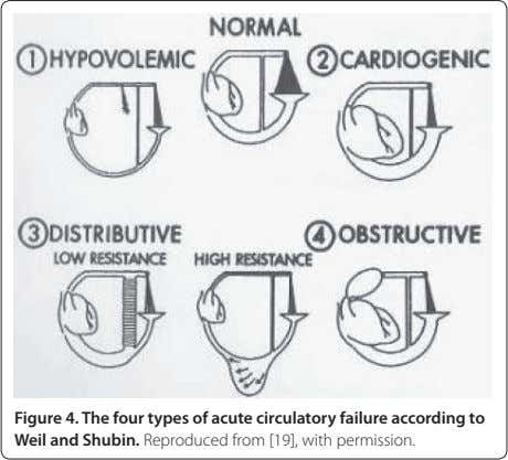 Figure 4. The four types of acute circulatory failure according to Weil and Shubin. Reproduced from