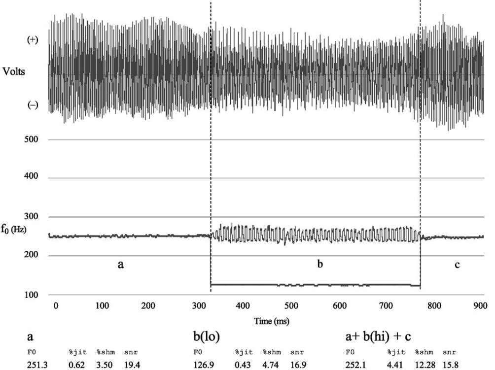 4 Part I: Voice Figure 1. Approximately 900 ms of a sustained vowel phona- tion waveform