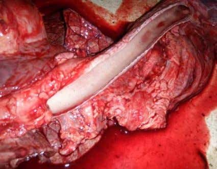 and cauliflower-like growth of the cardiac valve showing Fig. 1B: Photograph of the lung showing copious
