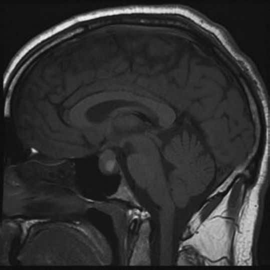 An urgent magnetic MRI brain was arranged (see Figure 1.1). Figure 1.1 MRI pituitary gland sagittal