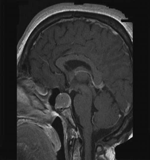 90 9.88 6.8 120 12 5.2 See Figure 1.7. Figure 1.7 MRI of the pituitary—sagittal view
