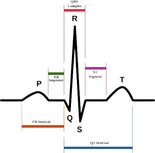 QRS duration • Measured from initial deflection of the QRS from the isoelectric line to the