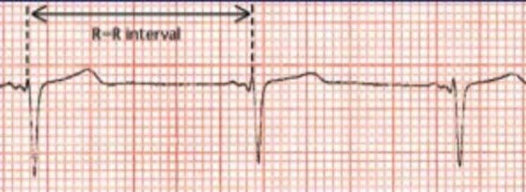 Measuring the R-R interval • Ventricular rate is calculated by looking at the distance between consecutive