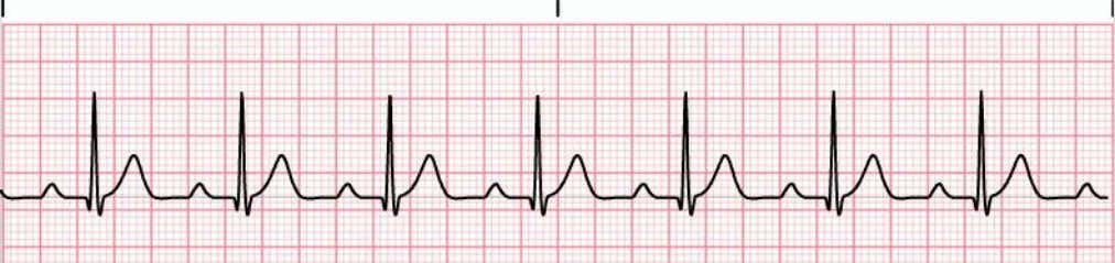 1 degree heart block • P wave precedes each QRS complex, but the P-R interval is
