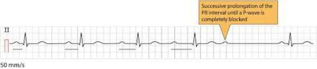 1. Mobitz Type 1 (Wenckebach phenomenon) • Rhythm runs in cycles • First P-R interval is