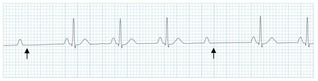 2. Mobitz Type 2 • P-R interval is constant • Duration may be normal or prolonged
