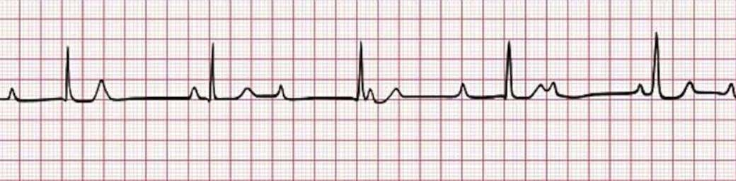 3 degree heart block • No functioning conduction between atria and ventricles • No constant relationship