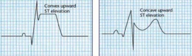 ST segment • Normally, isoelectric • Lies between QRS complex and T wave • ST elevation