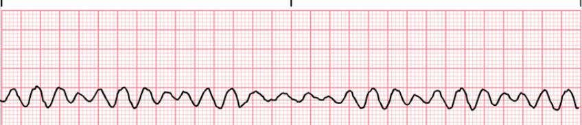 Cardiac arrest rhythms - Shockable • Priority in treatment is to deliver electricity to the heart