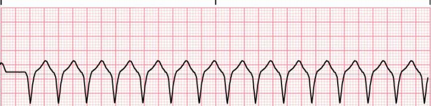 • Ventricular tachycardia • Broad QRS complex tachycardia • Distinctive appearance on ECG monitor • Not