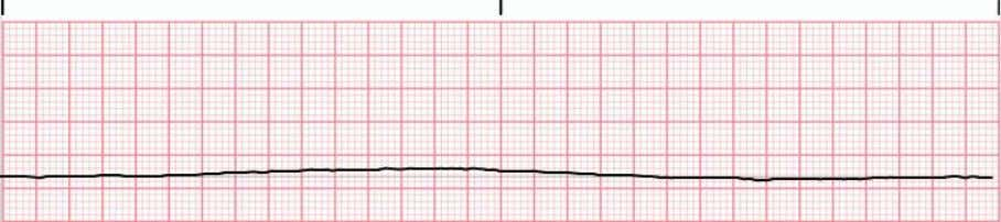 • Asystole • No identifiable cardiac electrical activity • Important to adjust the gain on the