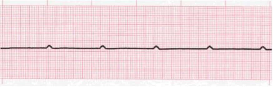 • P wave asystole • Rhythm where only P waves are seen • No ventricular activity