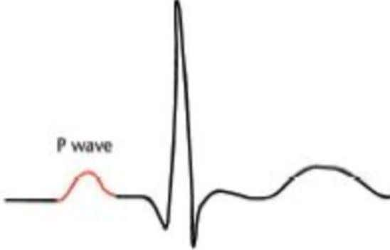 P wave • First bump • Atrial depolarization • Small, rounded wave