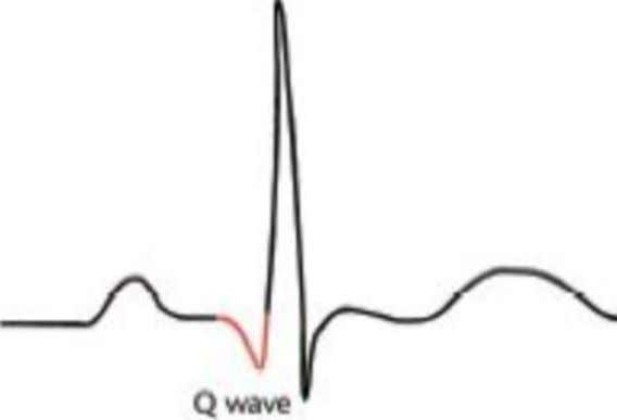 Q wave • Follows after a P wave • Downward dip • May or may not