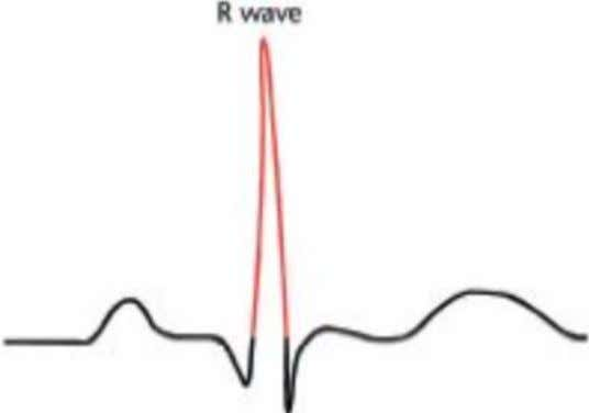 R wave • First upward peak after the P wave