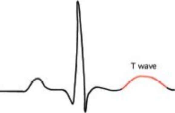 T wave • Upward deflection following QRS Complex • Large, rounded wave