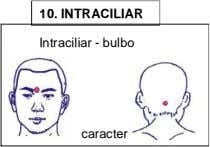 10. INTRACILIAR Intraciliar - bulbo caracter