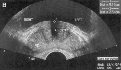 48 McAchran & Resnick Fig. 12. ( A ) Normal prostate, sagittal view. C, central zone;