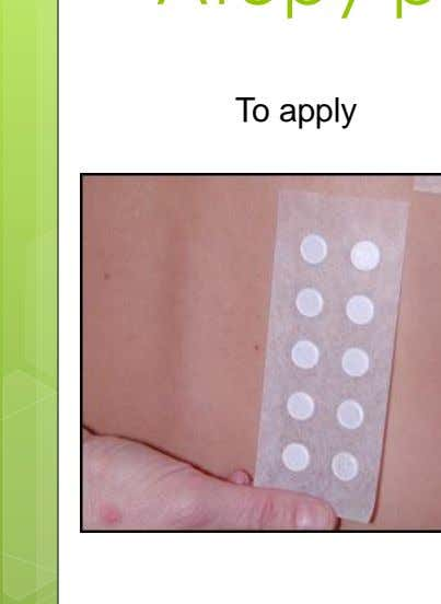 Atopy patch test To apply reading 72 HRS