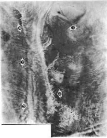 PLATE No. 3 This Radio-Vision photograph shows the Thyroid Gland (arrow A) in a case