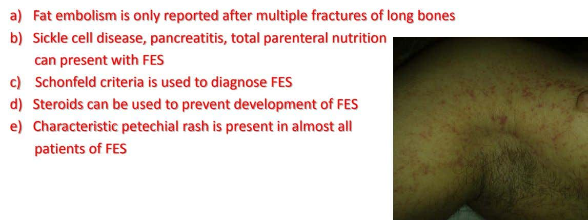 a) Fat embolism is only reported after multiple fractures of long bones b) Sickle cell disease,