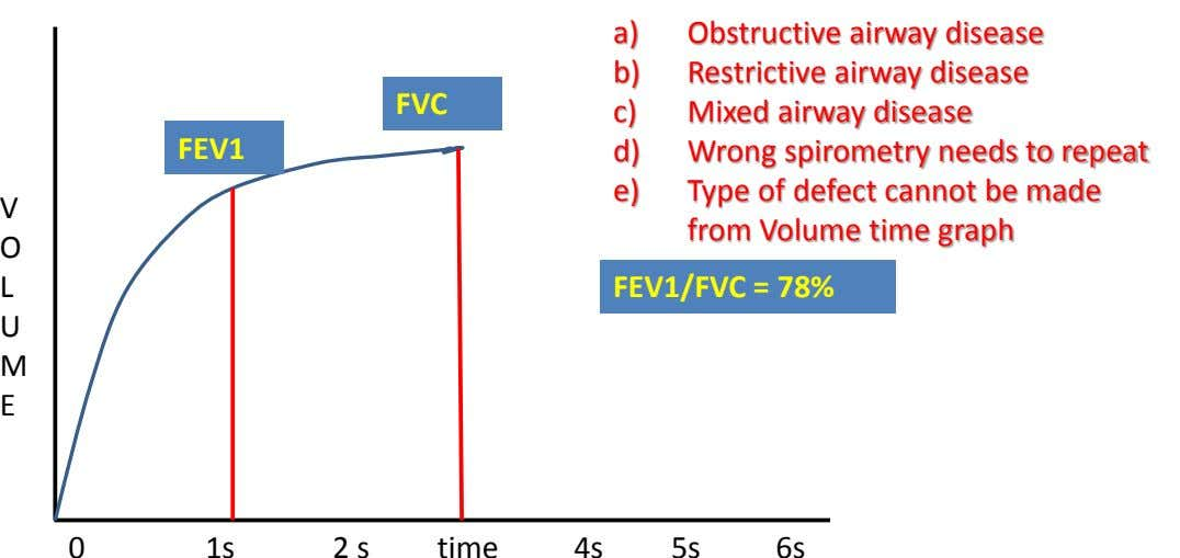 a) Obstructive airway disease b) Restrictive airway disease FVC c) Mixed airway disease FEV1 d) Wrong
