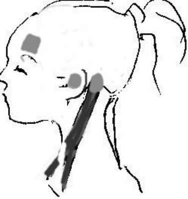 Sternocleidomastoid Just grab the muscle like in I am doing, bend the head to the side