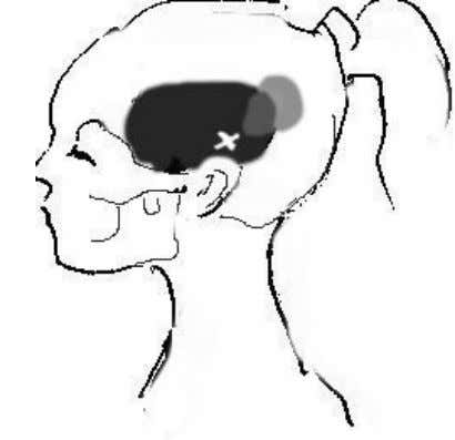 Temporalis Use your knuckles or some hard tool to locate temporal trigger points. But go easy