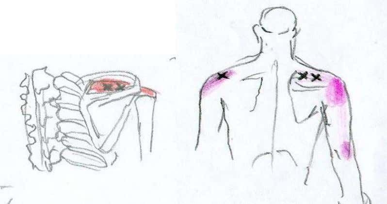 supraspinatus Stick as a tool is great to reach this, tennis ball on the floor can