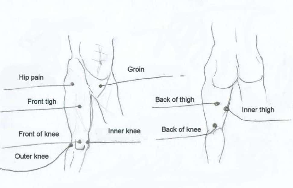 Hip, thigh, knee pain 43 PDF created with pdfFactory Pro trial version www.pdffactory.com