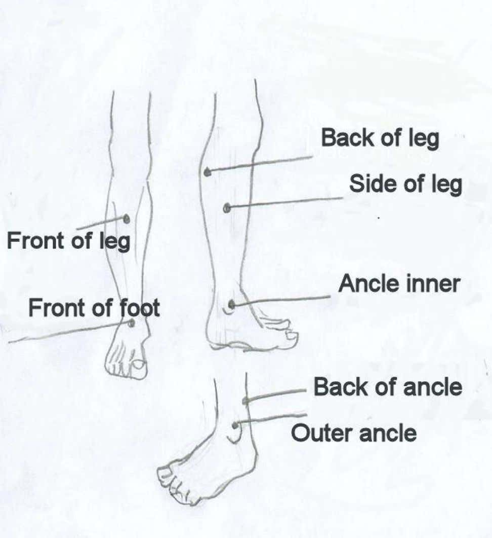 Leg and ankle pain 53 PDF created with pdfFactory Pro trial version www.pdffactory.com